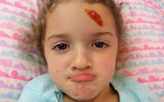 Почему ребенок бьет себя по голове?