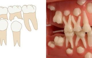 Как понять, какие зубы молочные?